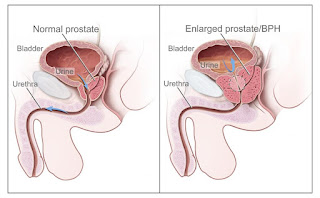 How to fight prostate cancer?