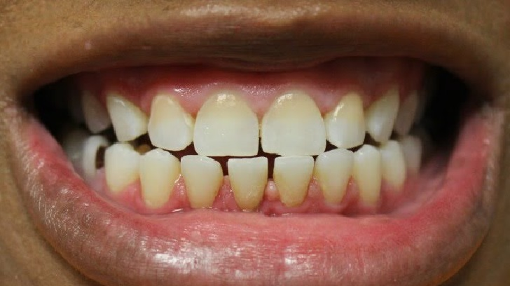 BROWN TEETH? SEE ANSWERS TO ALL YOUR QUESTIONS