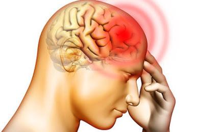 Sakit Kepala Setiap Hari dan Selalu Perlu Obat