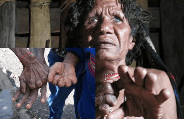 Tradisi Unik Potong Jari Dari Papua