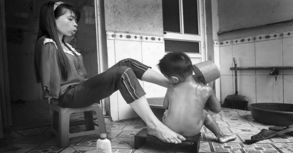 Γεννημένη χωρίς χέρια, ζει μια κανονική ζωή και φροντίζει τον ανιψιό της-Συγκλονιστικές φωτογραφίες