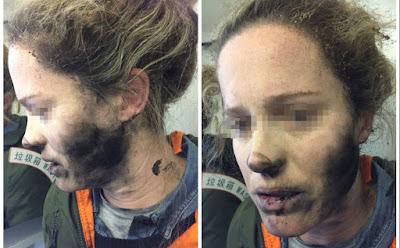 ΑΠΙΣΤΕΥΤΟ! Εξερράγησαν τα ακουστικά στο πρόσωπό της εν ώρα πτήσης