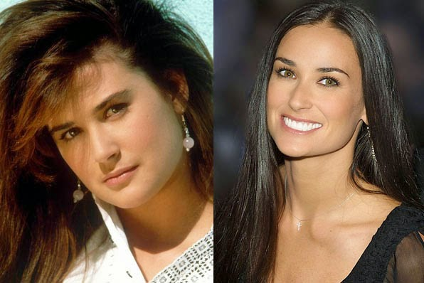Chatter Busy Demi Moore Plastic Surgery
