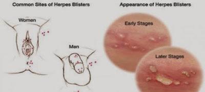 Harga Obat Herbal Penyakit Herpes Genital