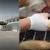 Aberrante caso de abuso sexual a un perro en Santa Marta
