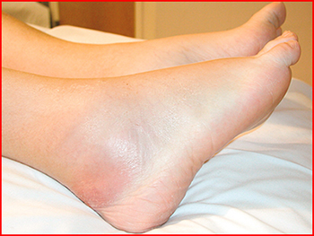 Aspergillus Osteomyelitis