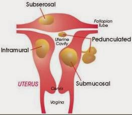 Types Of Uterine Fibroids