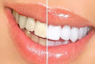 penyembuhan gigi berkarat dan karang gigi