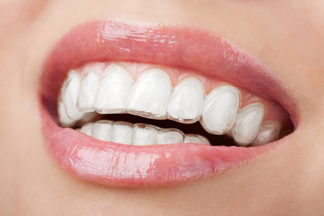 What is Invisalign, How It Looks, Invisalign reviews