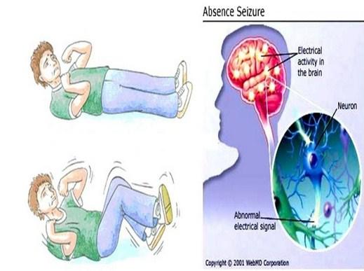obat epilepsi di apotik