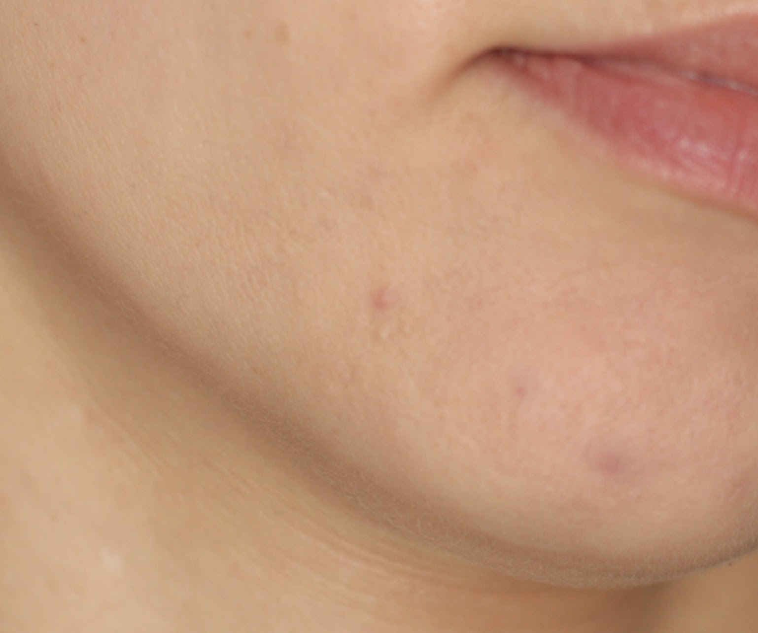 Hormonal acne spots are often located on your chin