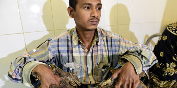 'Tree Man' of Bangladesh undergoes first operations to remove bark-like warts from hands and feet
