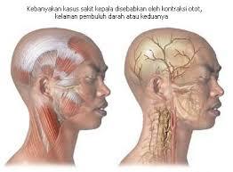 Cara Menyembuhkan Sakit Kepala dan Pusing