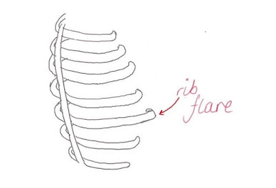 Ribcage diagram with rib flare