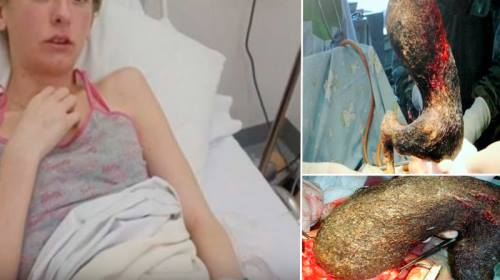 Ayperi Alekseeva Gets 9-Pound Hairball Removed From Her ...