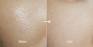 pori besar pada kulit yakni dilema kecantikan yang sering dihadapi banyak perempuan 10 Cara Alami Mengecilkan Pori-Pori Kulit Wajah