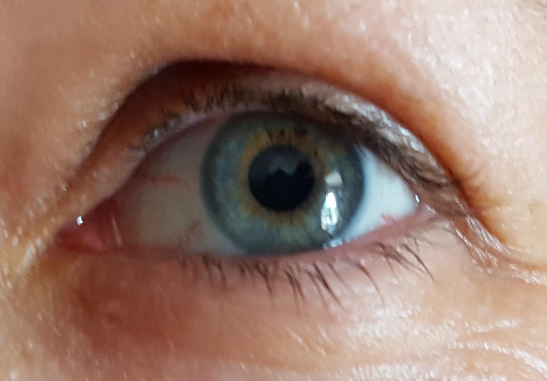 Que es un papiloma en el ojo - pestideacvariu.ro
