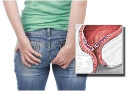 Gambar Cara alternatif sembuhkan Nyeri dan rasa tidak nyaman pada anus