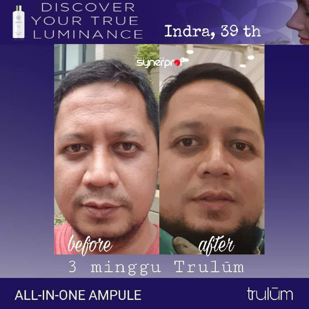 Jual Trulum All In One Ampoule Di Kalimanggis WA: 08112338376