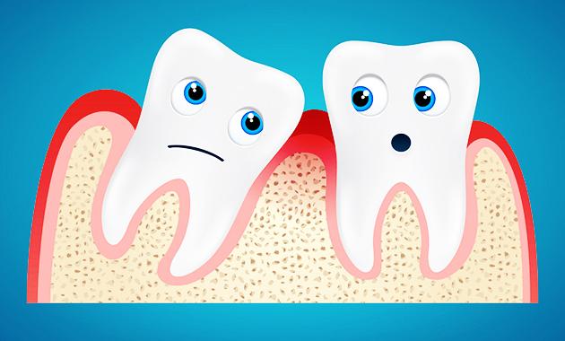 12 Masalah Yang Sering Muncul Pada Gusi dan Gigi