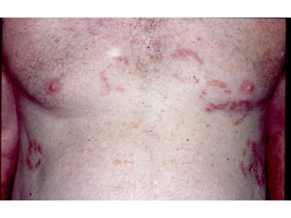 Consultations In Dermatology The Groin Cracks Hailey