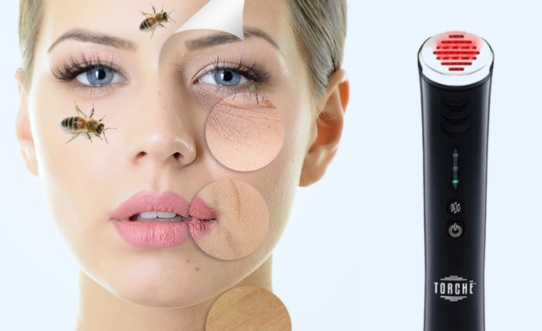 Jelessi Torche Red LED Light Therapy Combined With Venofye Bee Venom For Younger Looking Skin By Barbies Beauty Bits