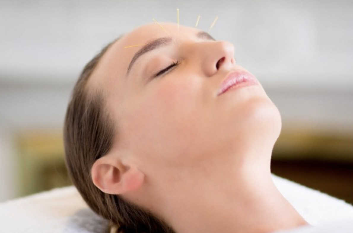 lifting acupuncture methode celine claret coquet avis test