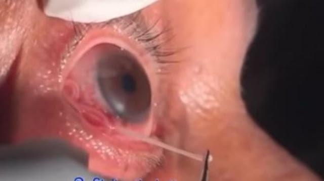 Video Ngeri Cacing 15 cm Bersarang di Bola Mata Pria, Ini Jawaban Medis