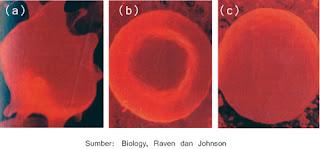 Contoh dampak peristiwa osmosis pada sel darah merah