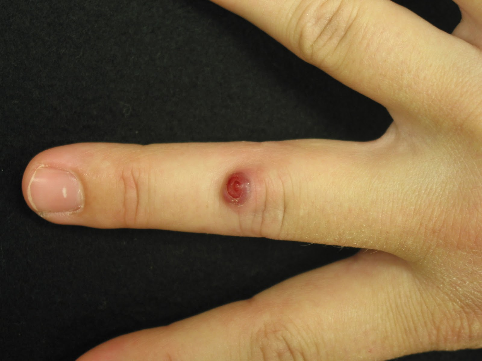 tipos de hemangioma infantil