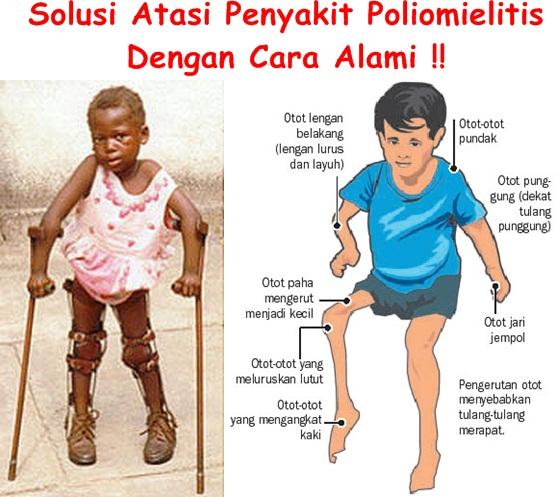 Obat Tradisional Poliomielitis