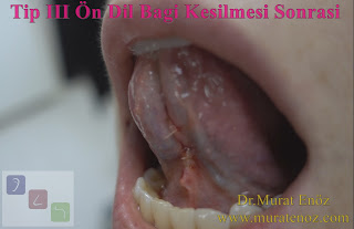Tongue tie relase before and after - Type III tongue tie release surgery - Type 3 tongue tie definition - Anterior tongue tie - Tongue tie release video - Tongue tie surgery - Tongue tie treatment - Tongue tie release surgery - Tongue tie treatment in Istanbul - Tongue tie frenectomy