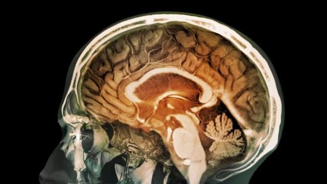 Partículas de metal absorbidas pueden alojarse en el cerebro y provocar Alzheimer y otras enfermedades