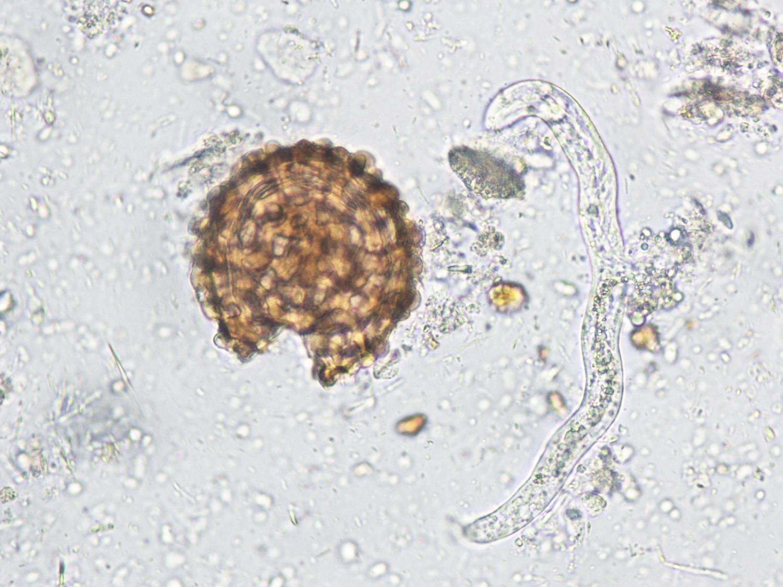 BEAUTIFUL footage shows microscopic vampire parasites that ...  |Beautiful Parasites