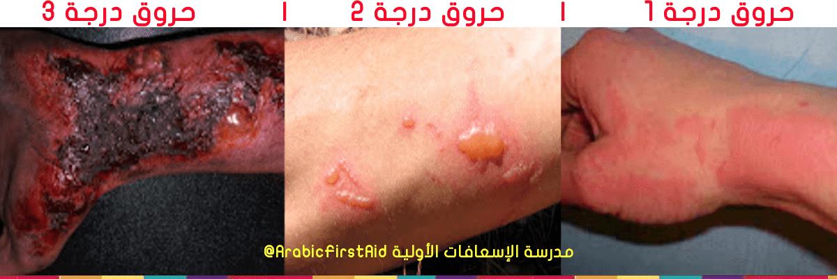 1st-2nd-3rd-degree-burns-treatment