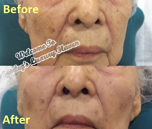 eha restylane fillers cheek before after