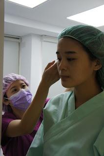 台中縫雙眼皮推薦何格彰醫師訂書針雙眼皮