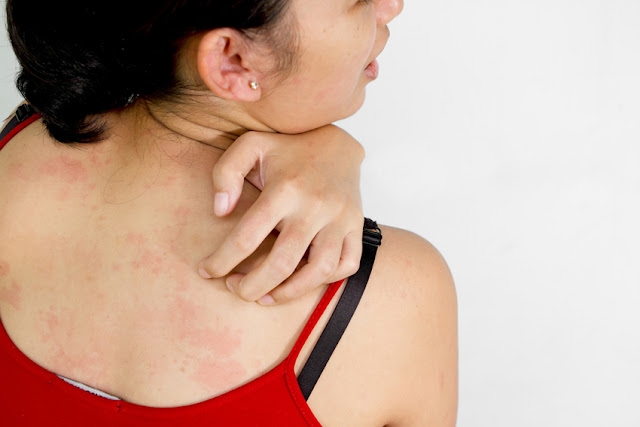 Natural Remedies To Get Rid Of Skin Rashes
