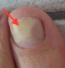 Fußnagel verfärbt sich nach Verletzung gelb und löst sich halb ab , jenn cosmetic