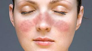 Berbahayakah penyakit lupus?