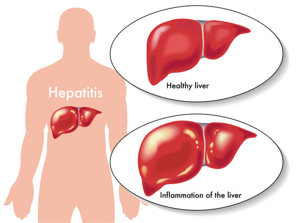 Diet for hepatitis B