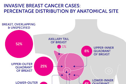 Breast Cancer, Definition, Sign and Indication Of Breast Cancer