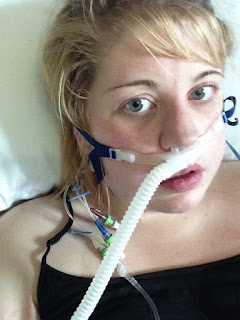 A young girl with blood hair with a central line and a nasal CPAP