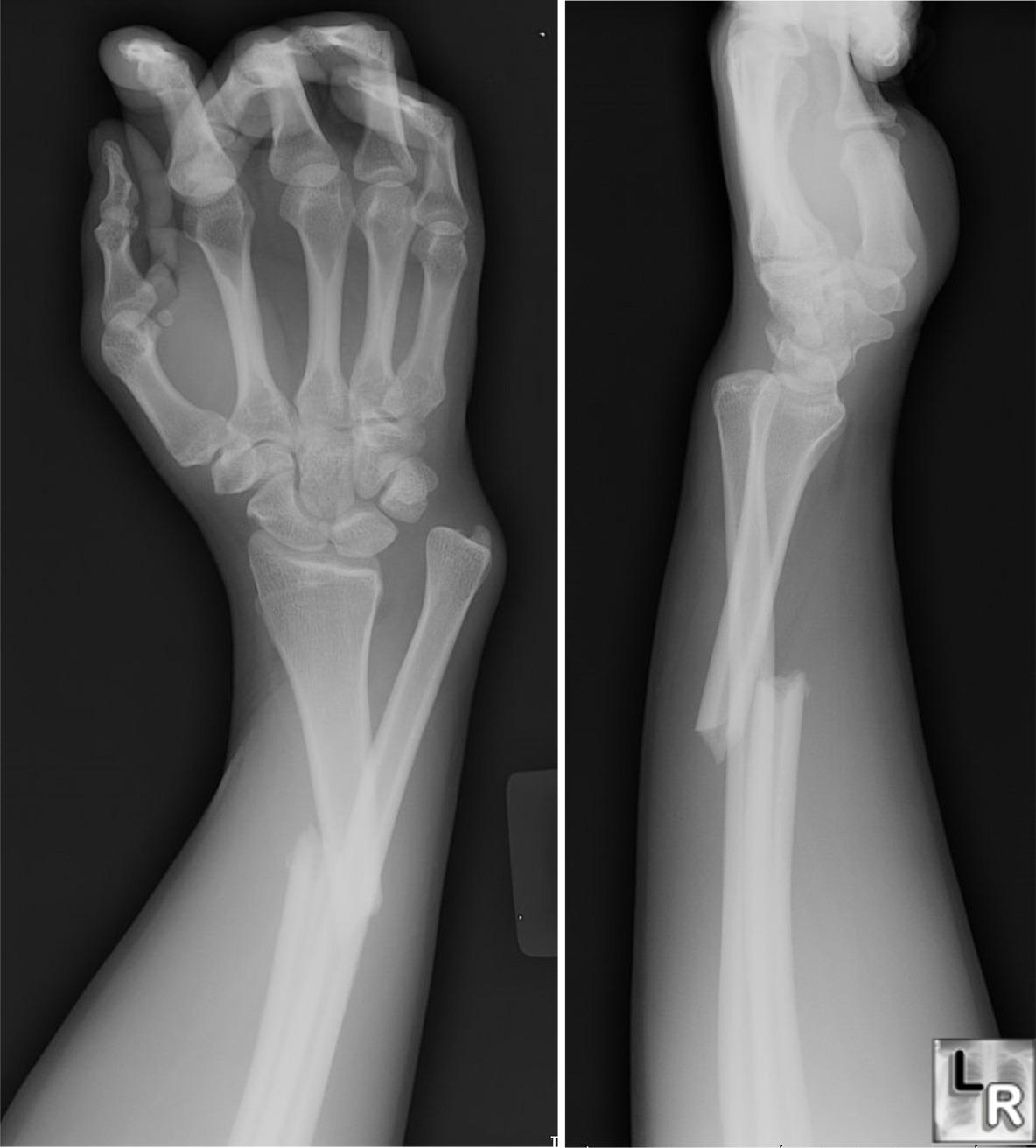 lesion del nervio mediano por fractura