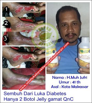 Obat Luka Gangren Tradisional Terampuh , Terbukti Manjur !!
