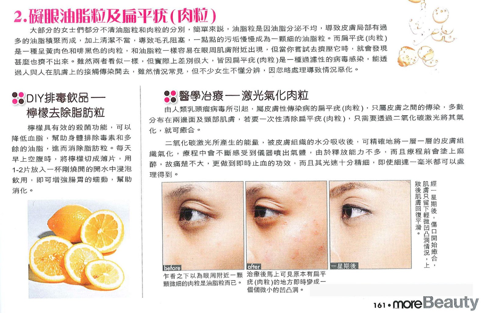 2. 礙眼油脂粒及扁平疣(肉粒) | Lasercare美容資料分享站