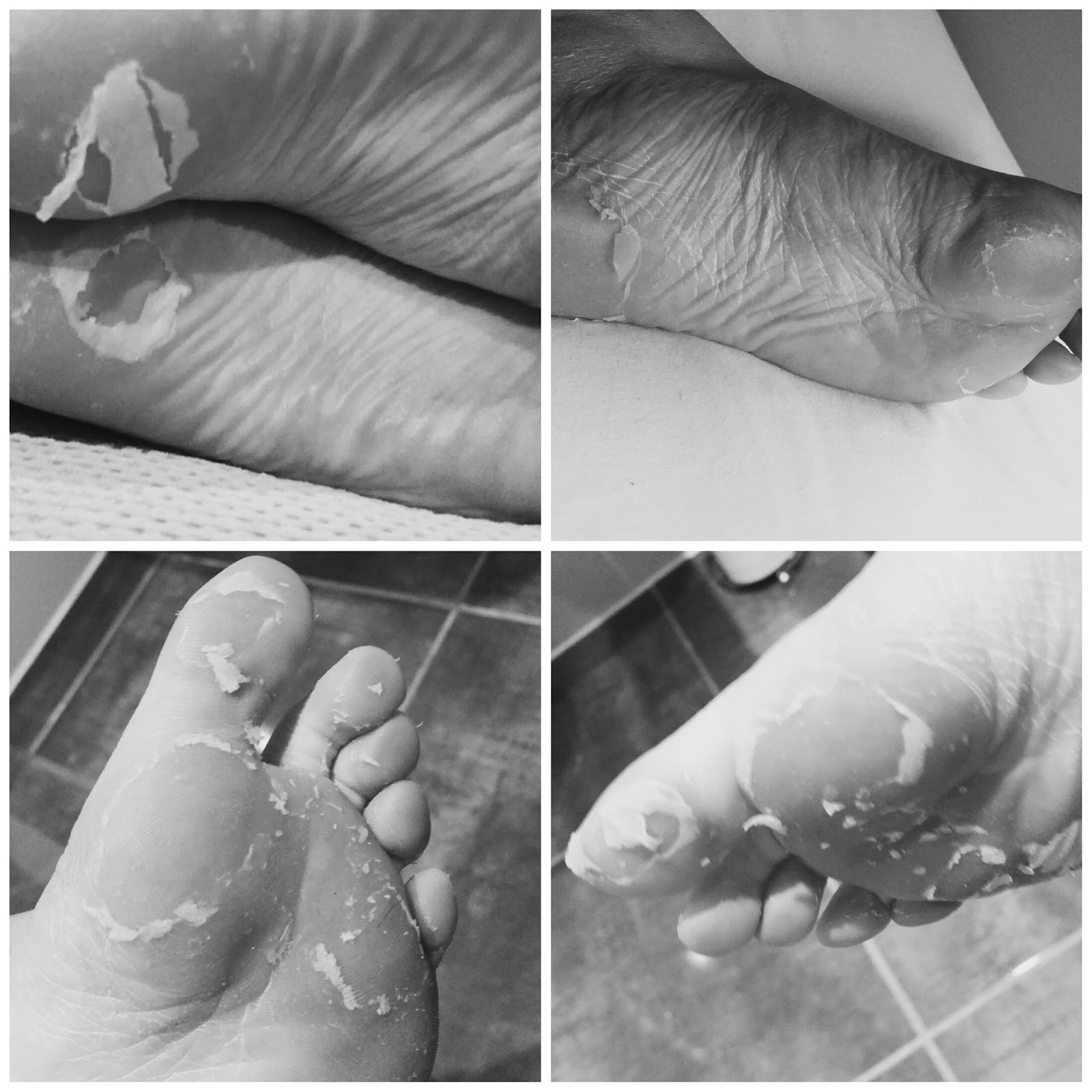 743eeb2c0e6ef0 Leanne Marie.  BEAUTY  Babyfoot foot mask review. My thoughts.