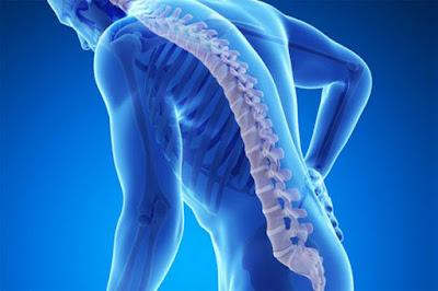 Sejumlah Faktor Penyebab Terjadinya Osteoporosis