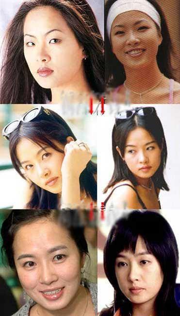 Korean Celebs Street Fashion Trends Review: Korean Celebrity Plastic Surgery