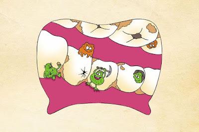 Sakit Gigi bisa Sebabkan Penyakit Jantung, Kok Bisa ? Ini Penjelasan Ilmiahnya !